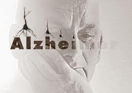 Alzheimer-malattia[1]